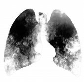 Cigarette Smokers Lungs Isolated On White Background With Copy Space. Smoking Kills, Concept With C poster
