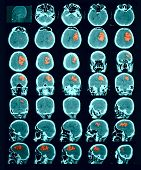 Ct Scan Of The Brain. Hemorrhagic Stroke.