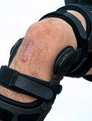 image of orthopedic surgery  - Knee brace for ACL football knee injury - JPG