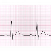 stock photo of graph paper  - Illustration of medical electrocardiogram  - JPG