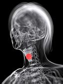 3d rendered medical illustration of larynx cancer