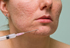 stock photo of papule  - Acne treatment with injection on girl - JPG