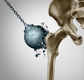 Strong Bones And Healthy Human Bone Orthopedics And Strength In Mineral Density Medical Concept As A poster