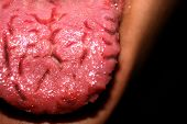 Cracks In The Tongue. Geographic Tongue. Candidiasis. Candida. poster