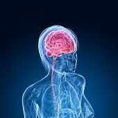 female brain cancer