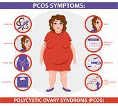 Pcos Symptoms Infographic. Polycystic Ovary Syndrome. Detailed Vector Infographic. Women Health. poster
