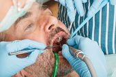 Dentist Drilling Tooth Of Adult Man