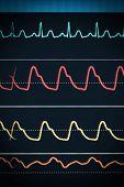 image of ecg chart  - ECG chart on the monitor around the clock surveillance - JPG