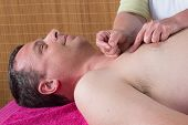 image of tapping  - Acupuncturist prepares to tap needle on man - JPG