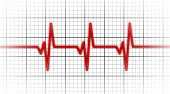 stock photo of heartbeat  - Electrocardiogram  - JPG