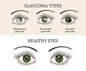 Eye Disease. Ophthalmology Health. Glaucoma Types Ans Healthy Eye. Vector Flat Eye Healt Illustratio poster
