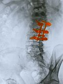 Lumbar Spine X-ray Of An 80 Year Old Man Who Underwent A Spinal Fusion Operation