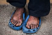 pic of priceless  - The feet of a old man who are in pain - JPG