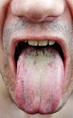 foto of face-fungus  - Disease medical infection tongue throat a man - JPG