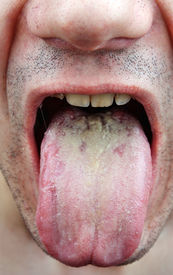 picture of syphilis  - Disease medical infection tongue throat a man - JPG