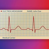 Electrocardiogram paper with normal ECG graphic line
