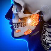 Mumps / Parotid Gland - Sickness