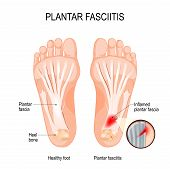 Plantar Fasciitis. Disorder Of The Connective Tissue Which Supports The Arch Of The Foot. Vector Dia poster
