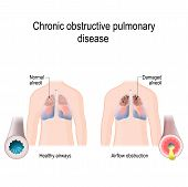 Chronic Obstructive Pulmonary Disease (copd). Vector Diagram For Medical, Educational And Scientific poster