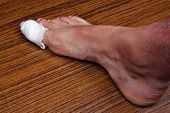 picture of felons  - Ingrown toenail disease blood wound infection bacteria finger skin scab pus toe liquid whitlow felon treatment on a brown table background - JPG
