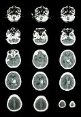 picture of hemorrhage  - Hemorrhagic Stroke  - JPG