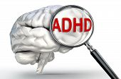 stock photo of attention  - ADHD word Attention Deficit Hyperactivity Disorder on magnifying glass and human brain on white background - JPG