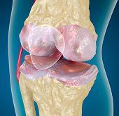 Osteoarthritis : Knee