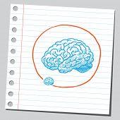 Brain orbiting