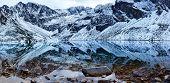 High Tatra Mountains Czarny Staw Gasienicowy (Black Pond)