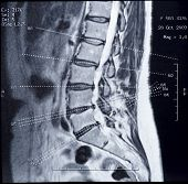 stock photo of lumbar spine  - Real MRI scan of human spine patient - JPG
