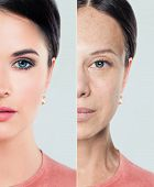 Perfect Female Face With Problem And Clean Skin, Beauty Treatment And Lifting. Before And After, You poster