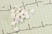 picture of electrocardiogram  - Tablets on electrocardiogram paper closeup shot local focus - JPG