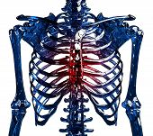 Skeleton Thoracic Pain