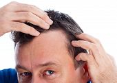 stock photo of hairline  - Middle age man suffering from androgenic hair loss - JPG