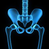 picture of hip replacement  - The hip region is located lateral to the gluteal region  - JPG