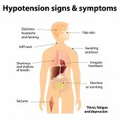 stock photo of dizziness  - Hypotension signs  - JPG