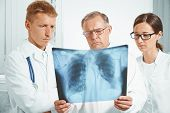 Doctors Examine X-ray Image Of Lungs