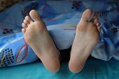 Female feet with callus