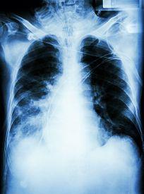 picture of pneumonia  - Pneumonia with respiratory failure - JPG